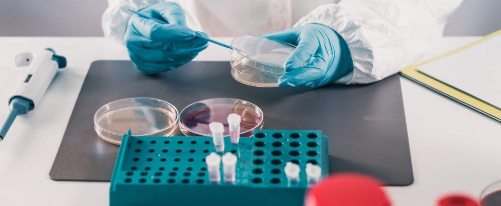 Eliminaciones y secreciones del usuario. Toma de muestras para el laboratorio.